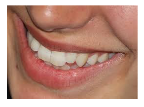 sydney CBD dental Healthy Gums