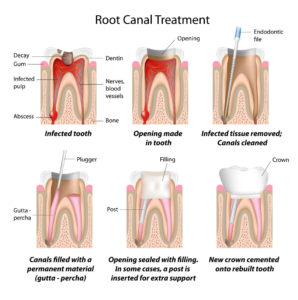 Sydney Dental Clinic Root Canal